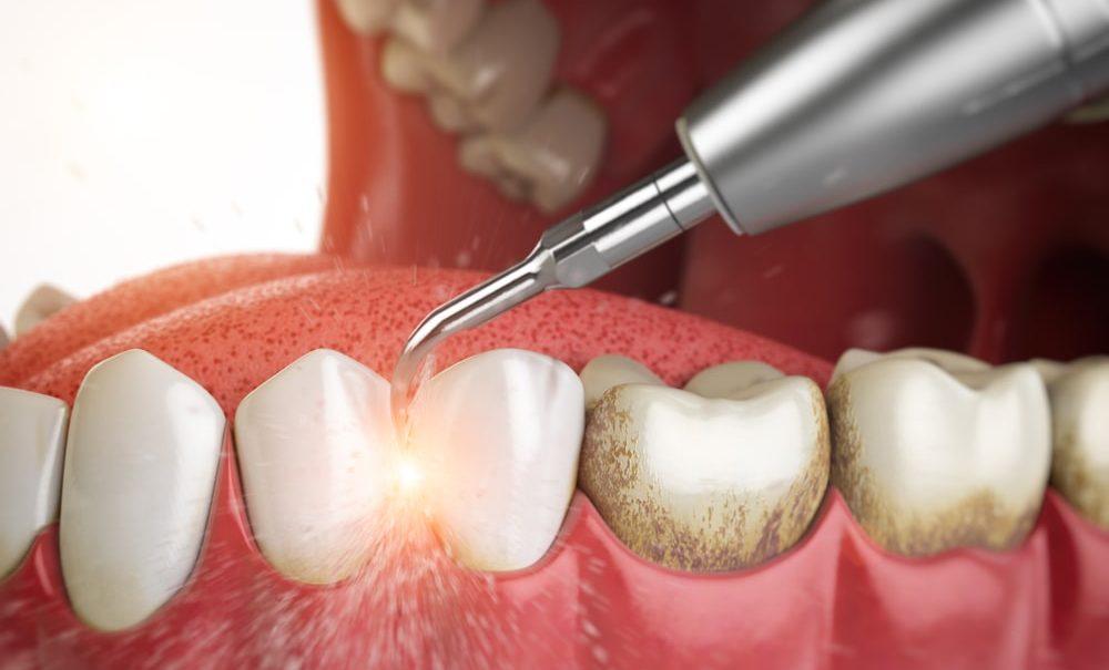 Зубной камень травмирует дёсны